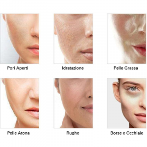 Trattamento Iono Skin 4 Prodotti + 1 Apparecchio
