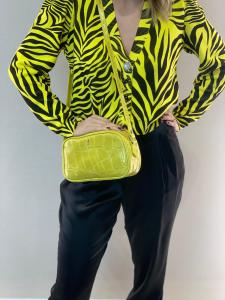 Cardigan stampa zebra gialla Aniye By.